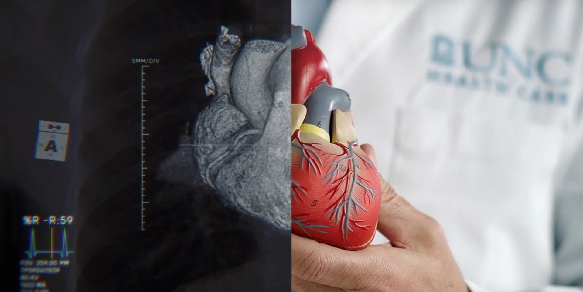 split screen of heart rendering and 3D model