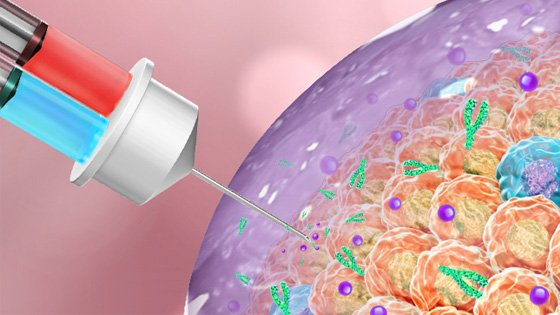 Rendering of needle inserting gel into tumor